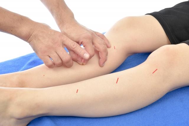 鍼灸施術で血液循環を改善して根本原因から改善します