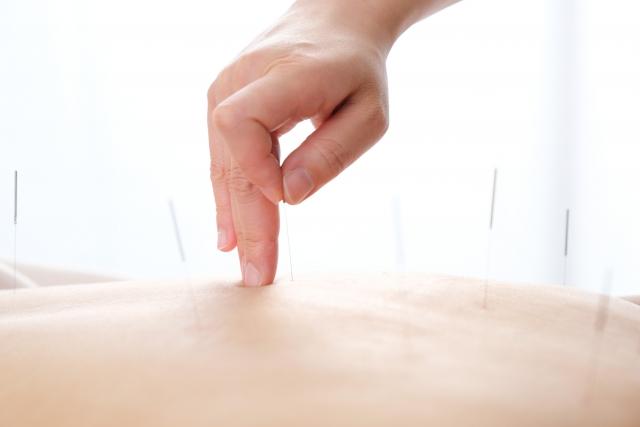 丁寧なカウンセリングと鍼灸施術で痛みの根本原因から改善します