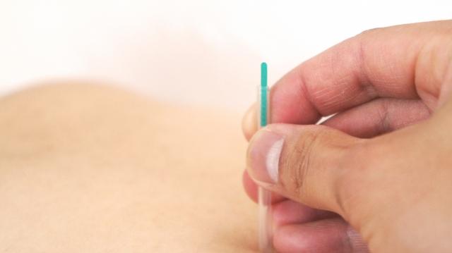 鍼灸施術で血流を改善し症状の根本から改善します