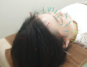 美容鍼、むくみやたるみ・フェイスラインを改善