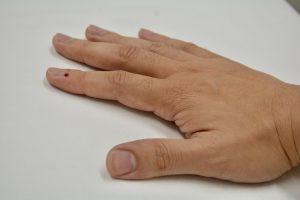 刺絡治療は瘀血を出すことで自律神経を整える