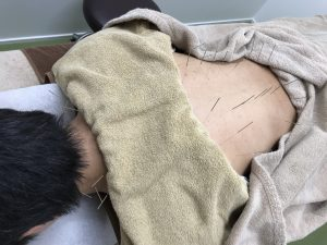 鍼灸治療で身体の疲労回復
